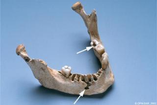 Machoire avec carie dentaire