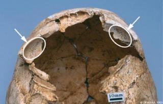 Crâne avec cribra orbitalia